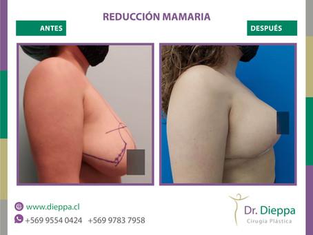 Hermoso resultado de una reducción mamaria