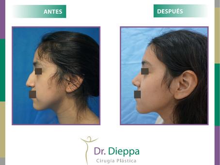 Rinoplastia: antes y después