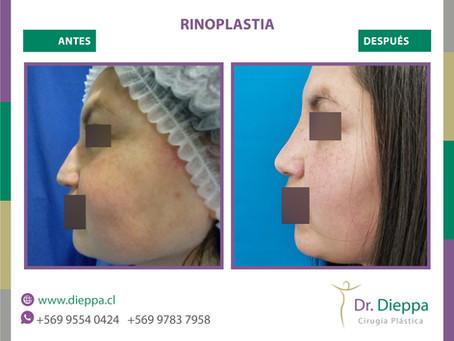 Una Rinoplastia con el Dr Dieppa