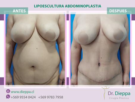 Lipo-abdominoplastia