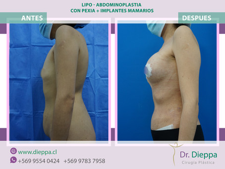 Lipo-abdominoplastia con pexia +implantes mamarios