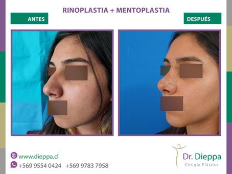 Rino-mentoplastia