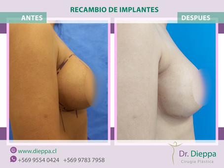 Cambio de implantes mamarios