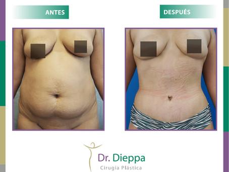 Lipoabdominoplastia para mejorar el aspecto del abdomen