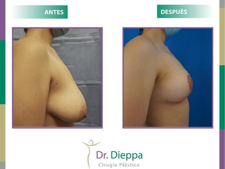 Pexia mamaria para levantar y reafirmar los senos