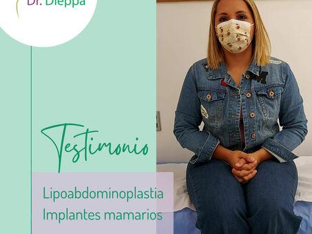 Lipoabdominoplastia con pexia en T más implantes mamarios