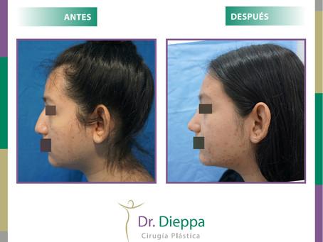 Rinoplastia: cambia el tamaño o la forma de tu nariz