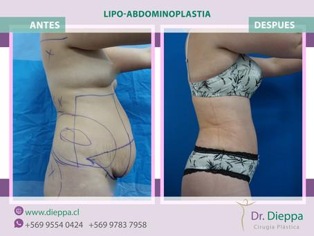 Lipo - Abdominoplastia