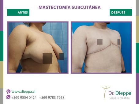 Mastectomía subcutánea