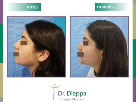 Corrige el aspecto de tu nariz