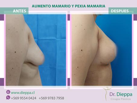 Pexia mamaria e Implante mamario