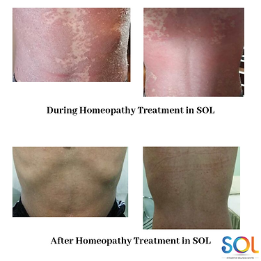 During Homeopathy Treatment in SOL (1).p