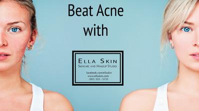 Beat Acne with Ella Skin