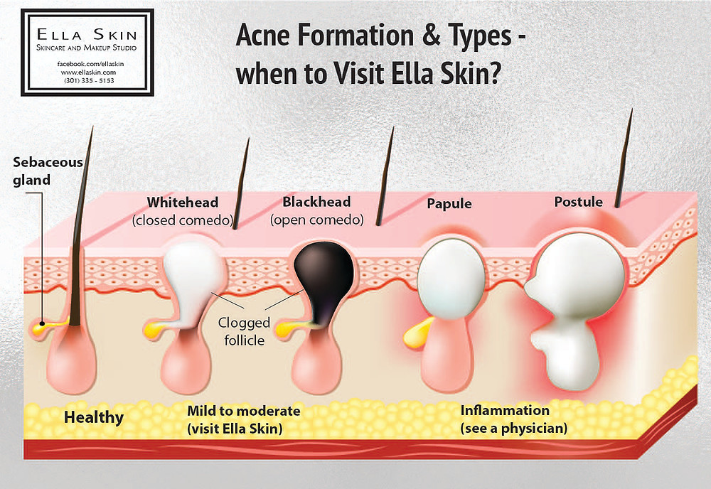 Recognizing your acne condition...