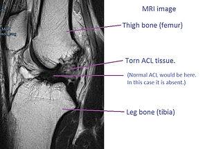 Alam Khwrshed MRI2e.jpg