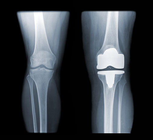 knee and knee with total replacement x-ray image ob black background