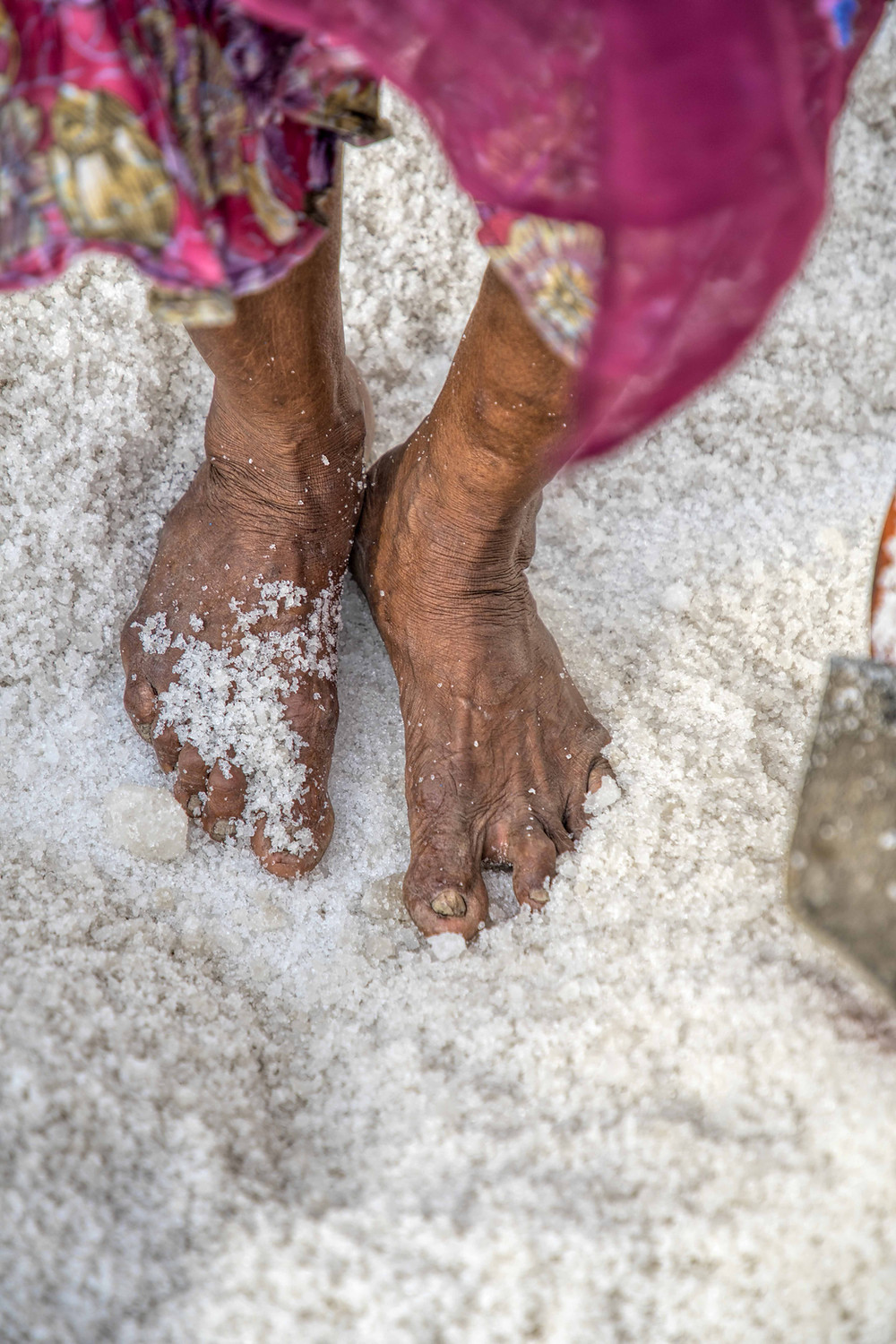 Salt pan worker feet has deformation