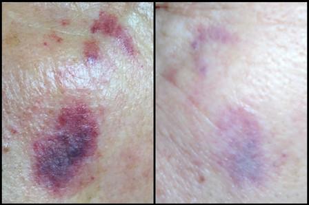 Laser & ThermaVein© Treatment