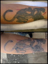 Ongoing Tattoo Removal