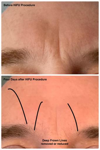 HiFU Procedure