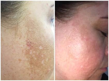 Melasma Treatment (hyper-pigmentation)