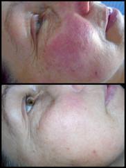 ThermaVein© Treatment