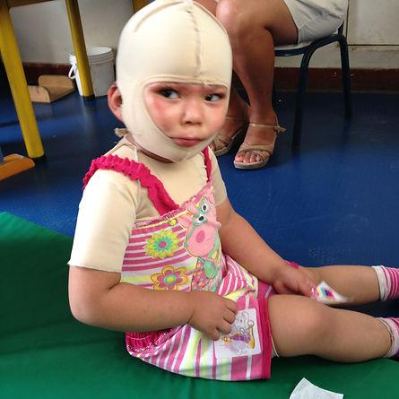 Young Peruvian girl burn victim