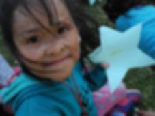 Peruvian burn survivor.