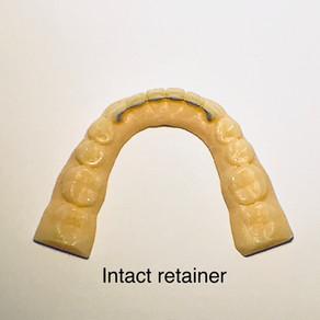 Loose Permanent Retainer