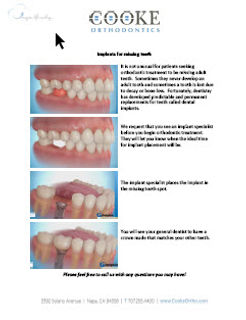 Implants for missing teeth.jpg