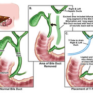 Bile Duct Removal_color.jpg