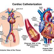 CardiacCath001.jpg