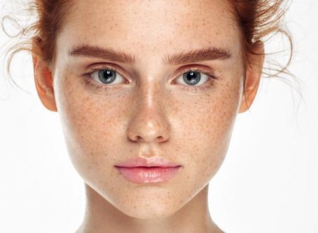 6 Ways To Get Oily Skin Under Control