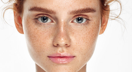 Skin Problem – What may be cause ?? (Part#2)