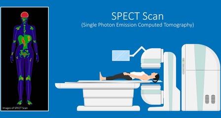 全身PET-CTの放射線ひばくはどれだけあるのか?