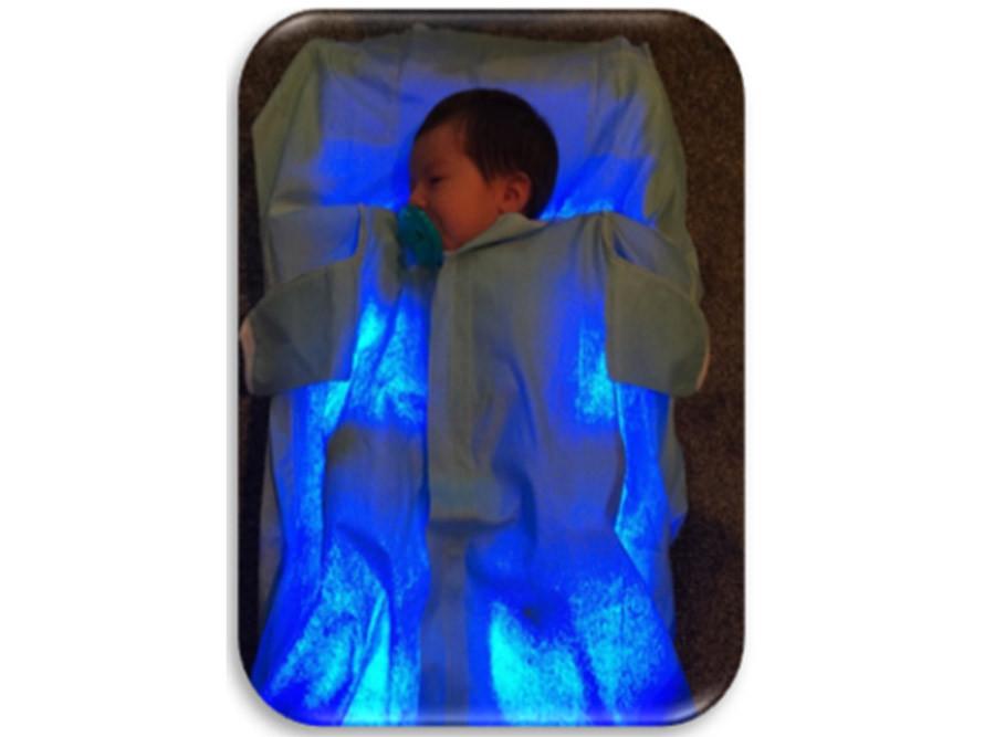 Bilibed Fototerapi cihazıyla ev ortamında tedavi