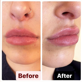 The lip flip 👄 before + after (pic take