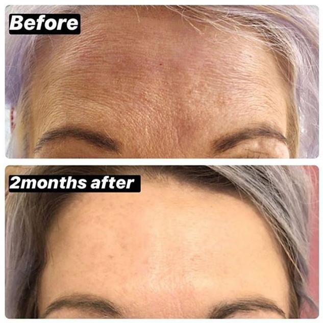 Anti-wrinkle forehead treatment $170. Fo