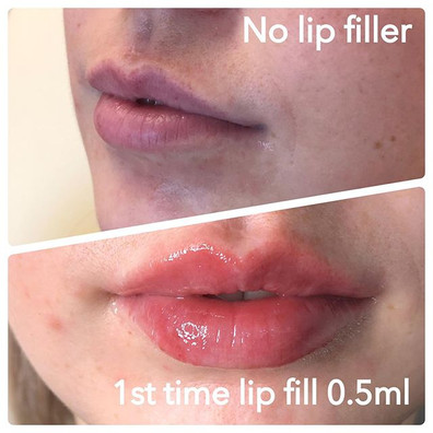 Swipe to see result after 2nd 0.5ml lip