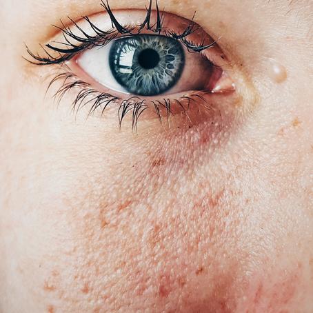 Manchas no rosto: conheça os tipos mais comuns, causas e tratamentos.
