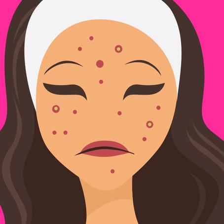 Verdades sobre acne.