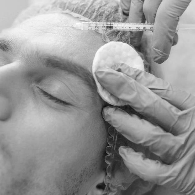Botox Masculino