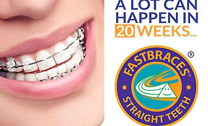 fastbraces, ardrum clinic, bishopstoen, cork, dentist barces