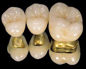 pfm dental crown