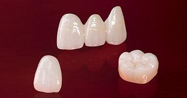 e max dental crown