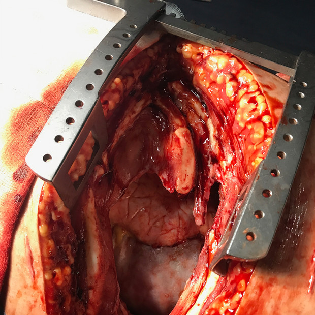 Thoracotomy operation