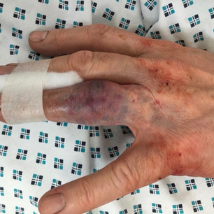 Swollen finger for 'Holby City'