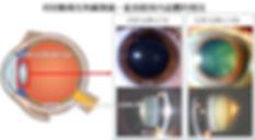 Cataract-e1489330297648.jpg