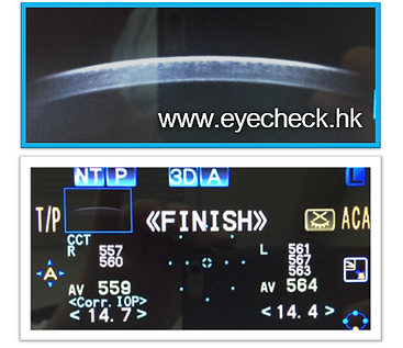 Corneal thickness.PNG
