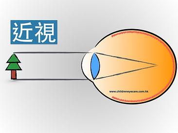 Myopia eye.jpg